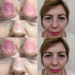 ουλή μετά από μεταμόσχευση δέρματος στη μύτη