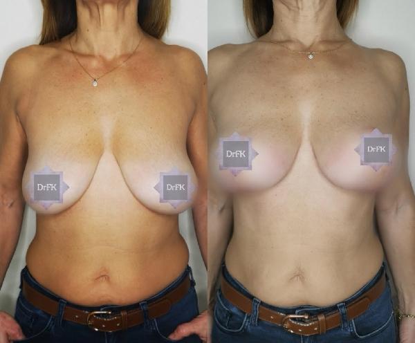 ανόρθωση στήθους