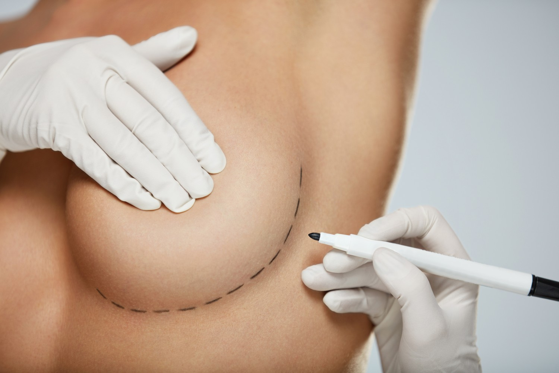πλαστική στήθους, αυξητική, στήθους, ενθέματα, πλαστικη, αυξητικη, σιλικόνη