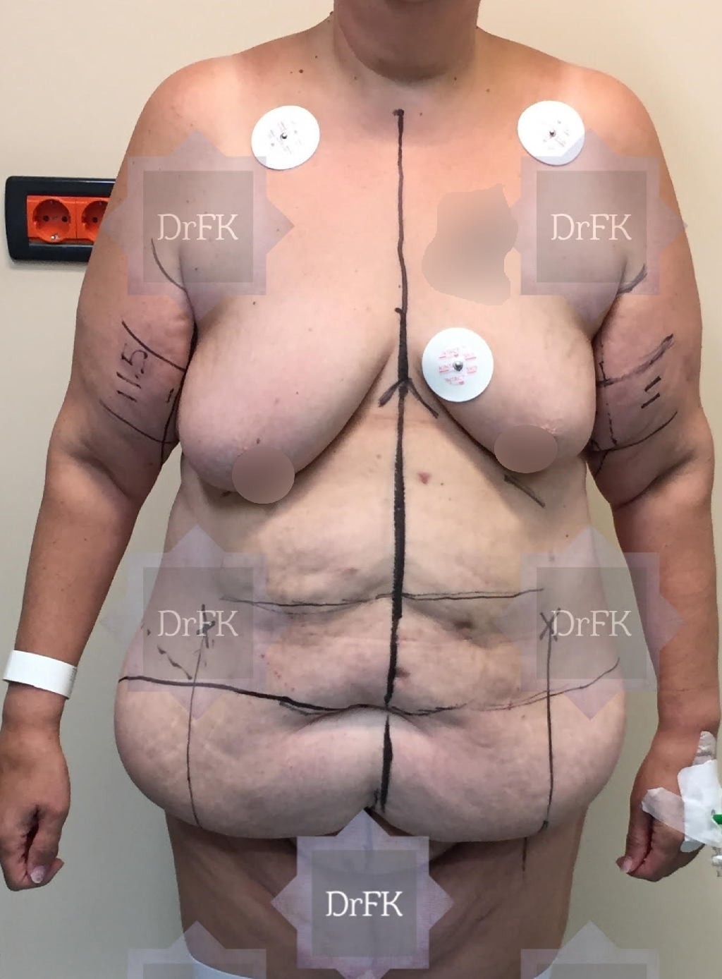 breastup01a