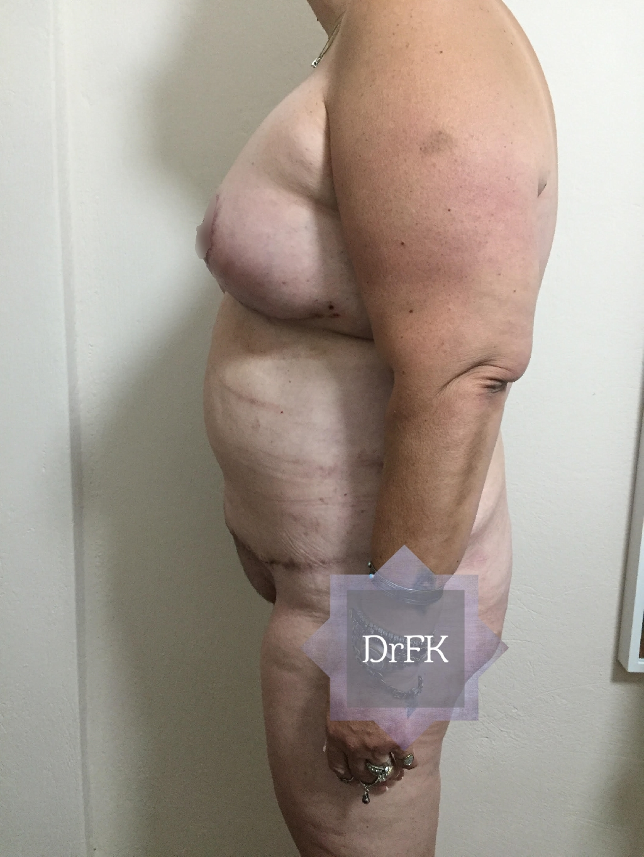 breastup03b